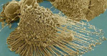 Thwarting Metastasis
