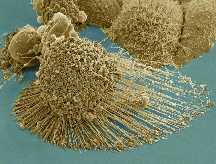 Thwarting Metastasis by Breaking Cancer's Legs with Gold Rods